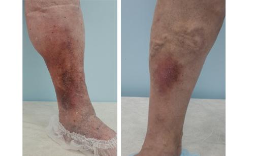Фото ног пациенток с венозной экземой и индурацией кожи голени